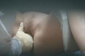 Гинеколог засовывает пальцы в вагину
